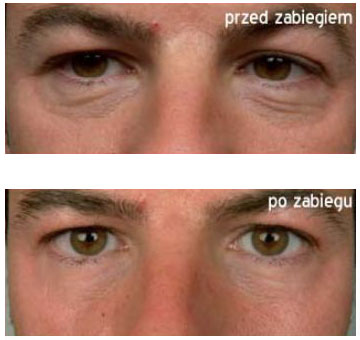 Mezoterapia Light Eyes Ultra