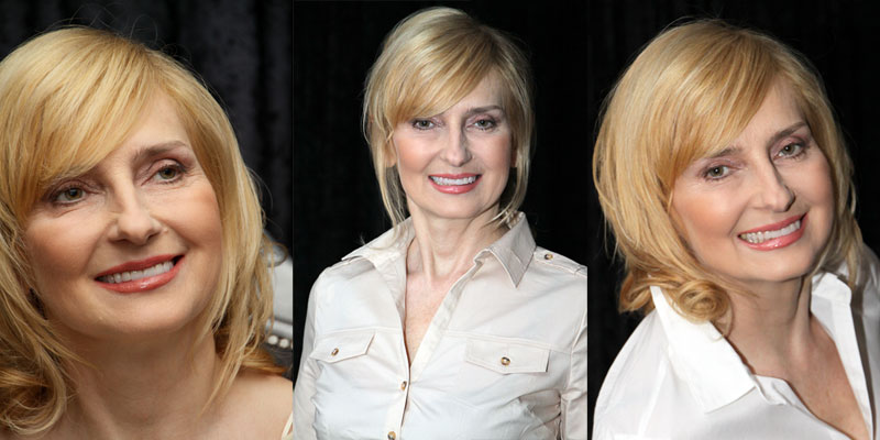 Małgorzata after the makeover treatment at UNIDENT UNION DENTAL SPA Clinic