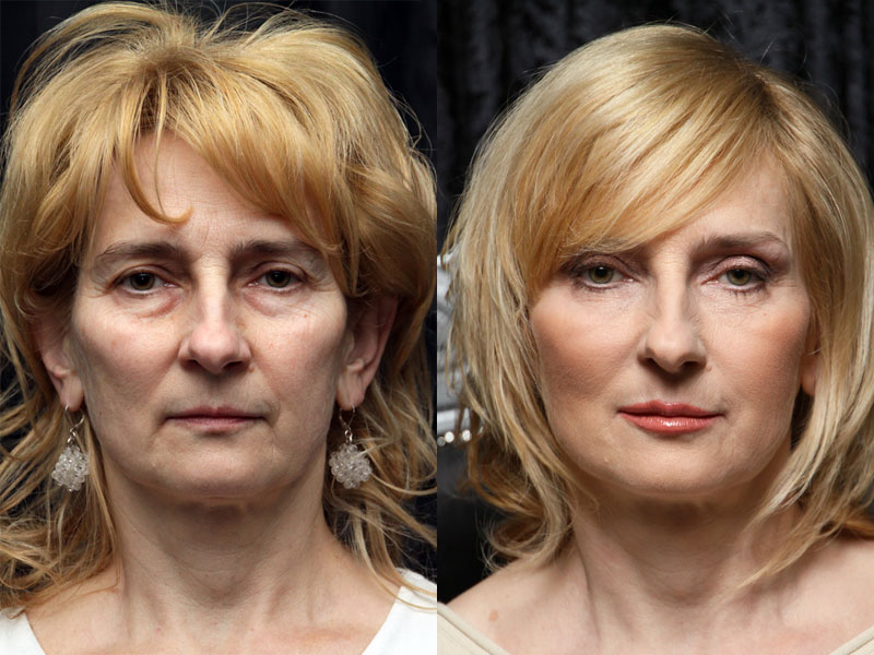 Małgorzata before and after the makeover treatment